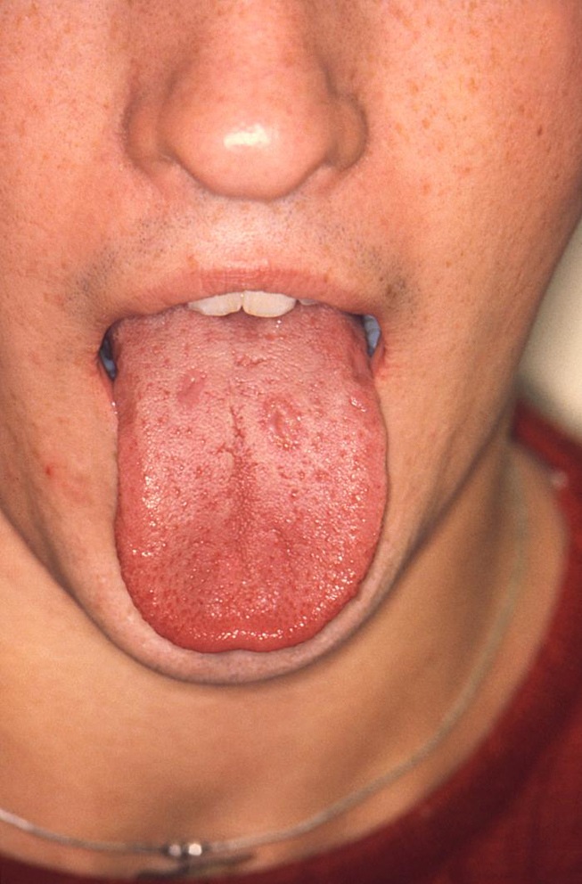 Sexually transmitted disease tongue
